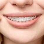 05-ortodoncia